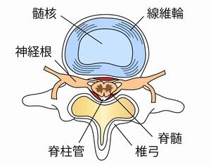 椎骨よ椎間板